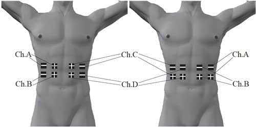 placement-electrode-abdominaux