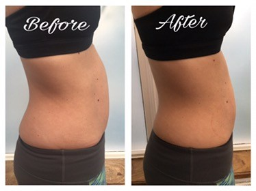 6 semaines slendertone connect abs