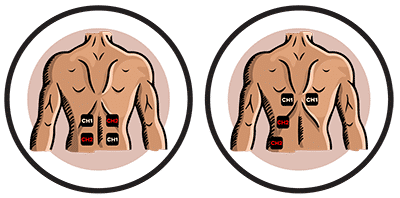 position-electrode-douleur-dos